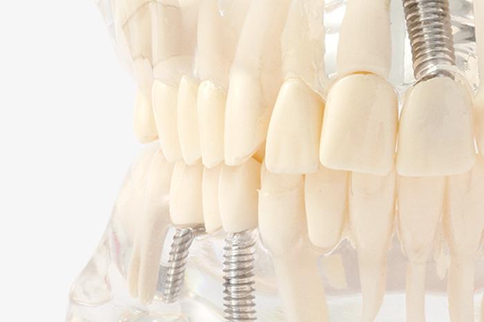 他の歯に負担をかけないインプラント治療