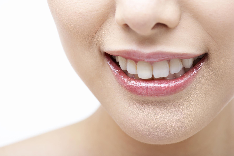 歯を白くするホームホワイトニング